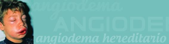 angiodema hereditario